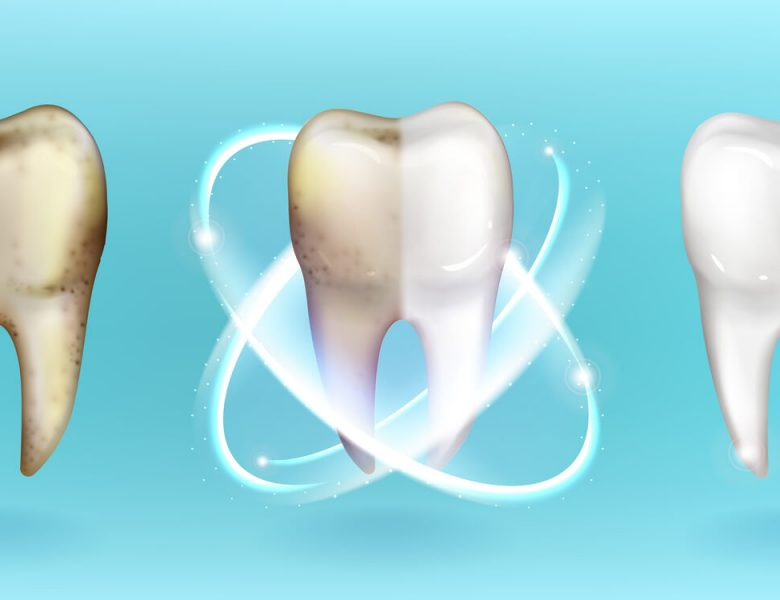 Ce qu'il faut savoir sur les bandes de blanchiment des dents
